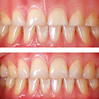 Before and after photos showing the teeth that have undergone a crown lengthening procedure.