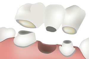 Diagram of a dental bridge being placed in the mouth with three teeth total.