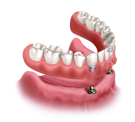 Implant supported dentures being snapped onto lower gum line.