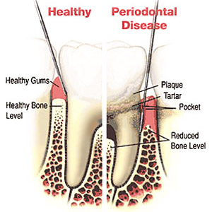 Medical model of a tooth and the tooth root showing reduced bone level and periodontal disease.