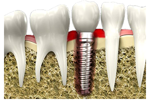 A dental implant surrounded by inflamed and irritated gum tissue.