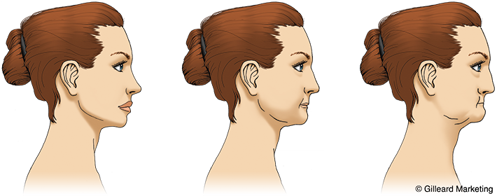 Progression of bone loss in a woman resulting in a sunken in look to the jaw line.