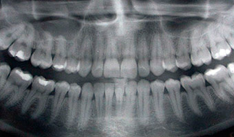 X-ray of the top and bottom rows of teeth in a person's mouth.