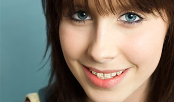 Teenage girl with braces smiling.